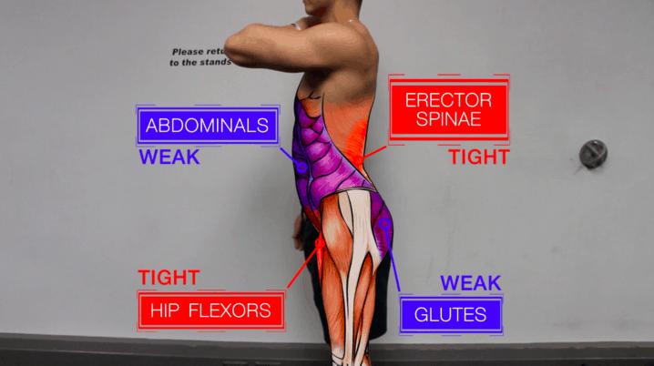 anterior pelvic tilt anatomy